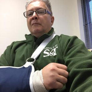 Me, about four days after fracturing my right elbow